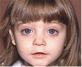 Fetal Alcohol Syndrome Image
